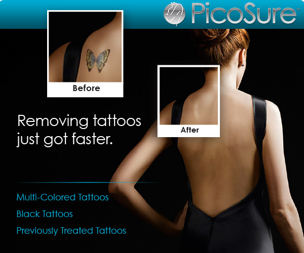 tatto removal treatment